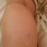 צביקה הוכשטיין - טיפול בכאבי גב וכאבי שרירים בקיבוץ דפנה
